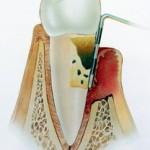 Schwere Parodontitis